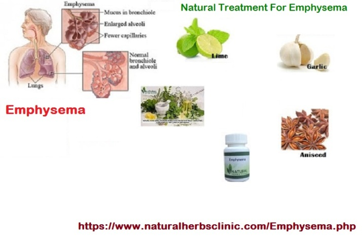 Natural Herbal Treatment For Emphysema